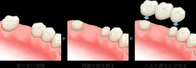 イラスト:歯のない状態⇒両隣の歯を削る⇒人工の歯をかぶせる