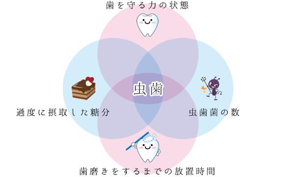 図:虫歯 歯を守る力の状態 虫歯菌の数 過度に摂取した糖分 歯磨きをするまでの放置時間