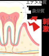イラスト:エナメル質 象牙質 刺激