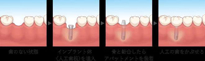 イラスト:歯のない状態⇒インプラント体(人工歯根)を埋入⇒骨と結合したらアパットメントを装着⇒人工の歯をかぶせる