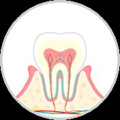 歯周病(軽度) 歯肉炎