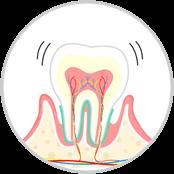 歯周病(中度) 歯周炎