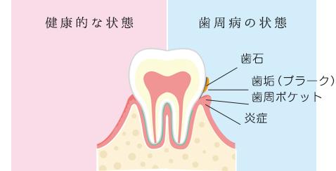 図:健康的な状態。歯周病の状態、歯石・歯垢(プラーク)・歯周ポケット・炎症